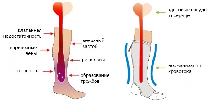Как избавиться от болей в ногах при варикозе