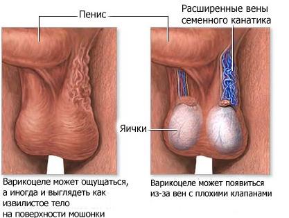 Проверить вены на тромбы
