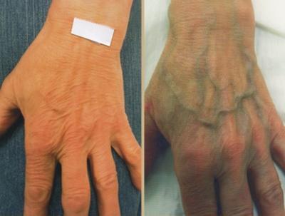 Брали кровь из вены болит рука