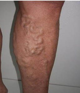 Кровотечение из варикозно расширенных вен пищевода мкб 10