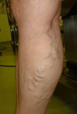 Как в Китае лечат варикоз на ногах