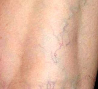 Начальная стадия варикоза - симптомы и лечение