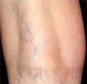 Варикоз вен на ногах: лечение, народные средства 24