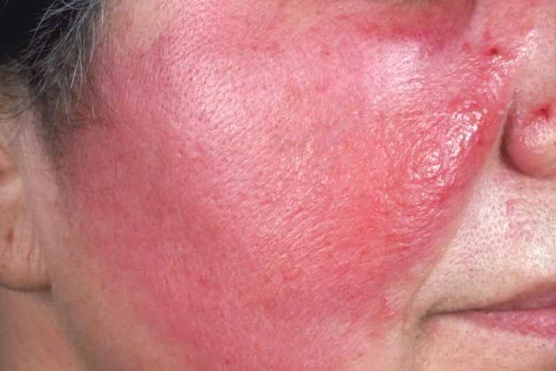 Рожистое воспаление на лице