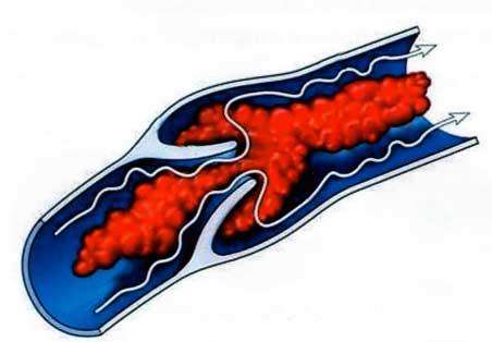 Самым грозным осложнением варикоза на ногах является тромбоэмболия – попадание сгустка крови в легкие, это может привести к смерти.