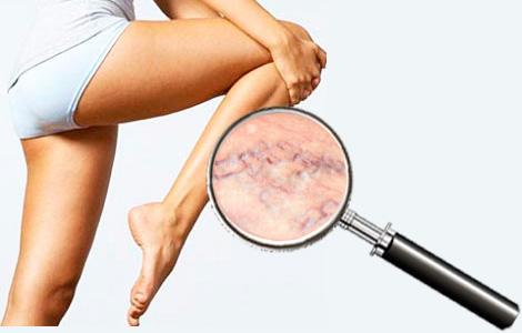 Варикоз на ногах: причины болезни и методы лечение