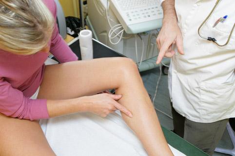 Варикозная болезнь нижних конечностей: симптомы и стадии, лечение вен