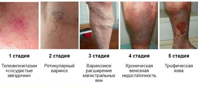 варикоз вен на ногах начальная стадия