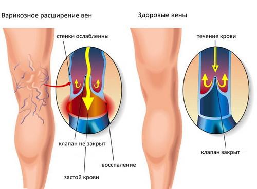 Все о начальной стадии варикоза