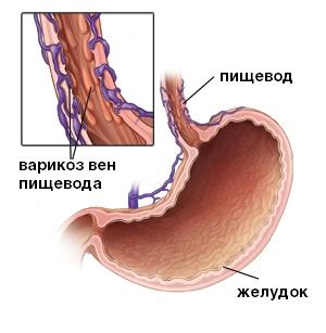 Варикозное расширение сосудов пищевода. Причины и лечение заболевания