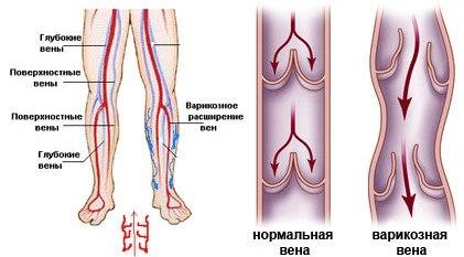 Варикоз у мужчин - причины, симптомы, лечение и профилактика