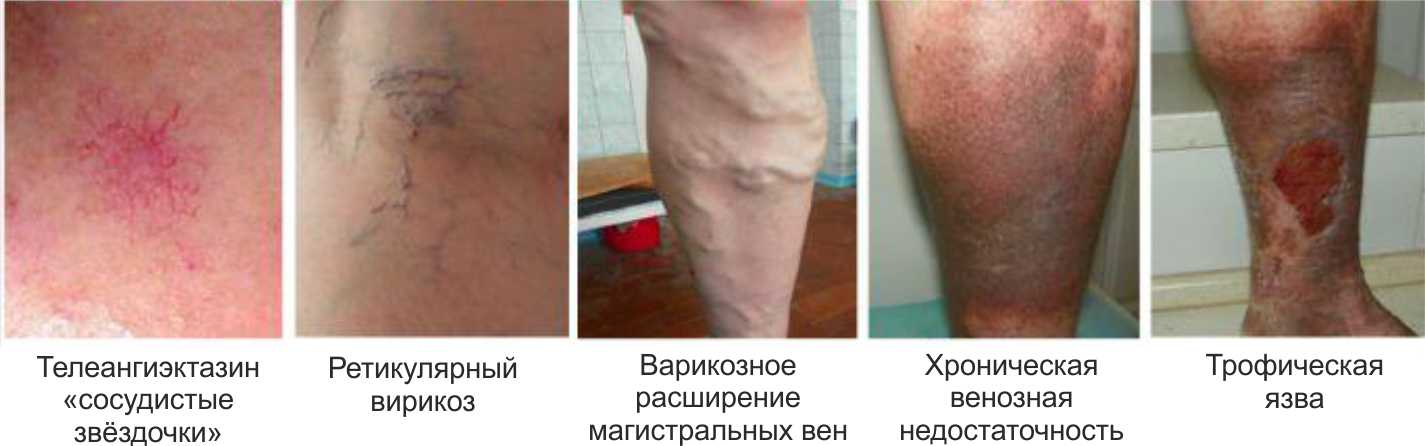 признаки варикоза ног у женщин фото