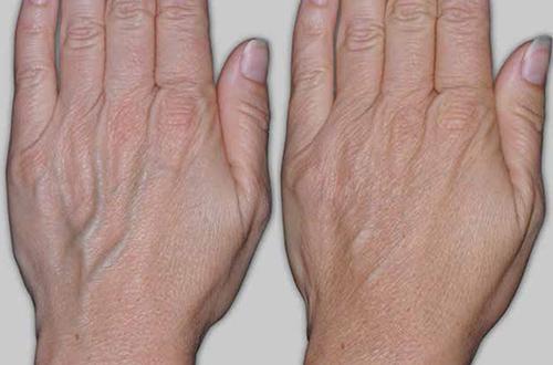 Симптомы варикоза у женщин: первые признаки заболевания