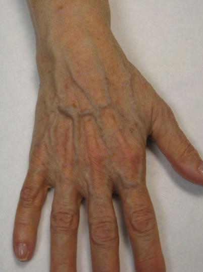 симптомы сильной аллергии