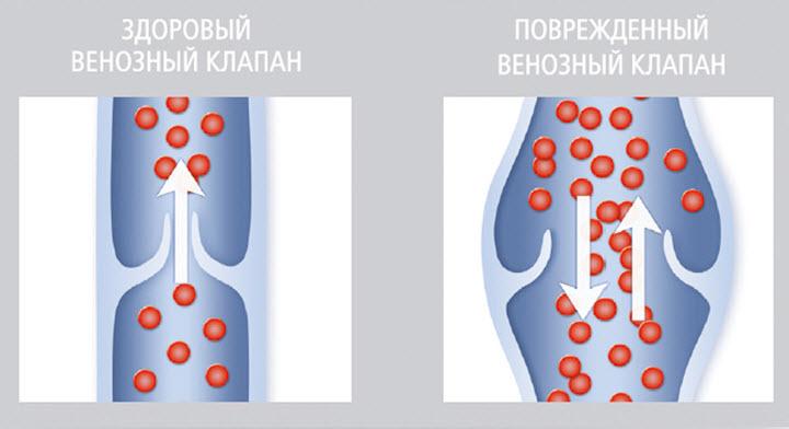 Мучает варикоз вен на ногах? Лечение народными