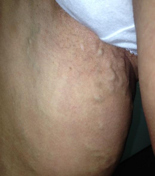 варикоз в паху при беременности форум