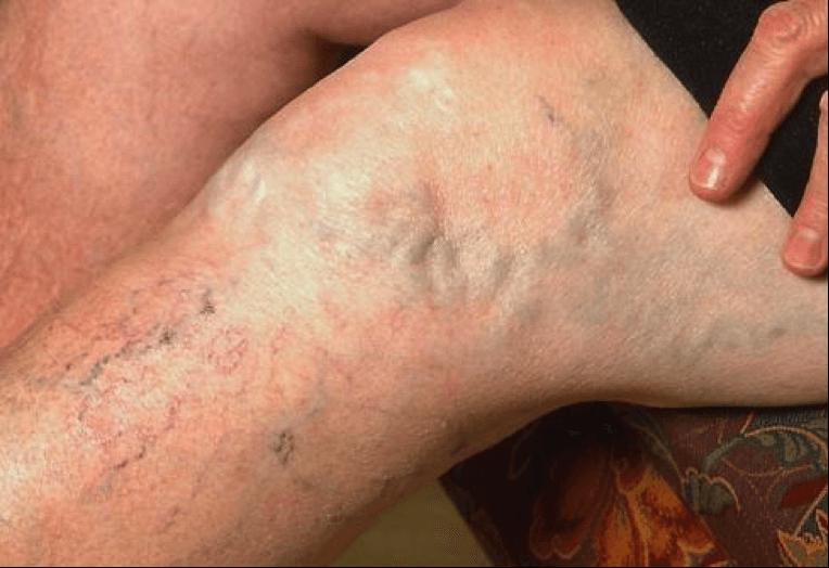 Внутренний варикоз: виды, симптомы, лечение заболевание