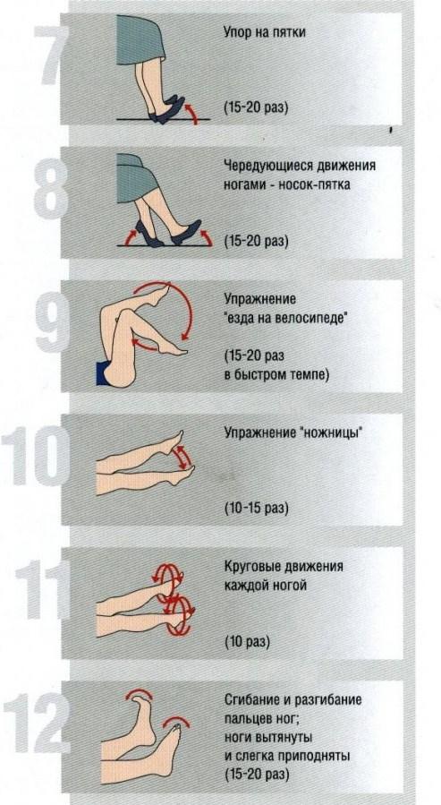 Как предотвратить и избежать варикоз на ногах