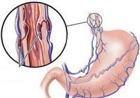 варикоз желудка