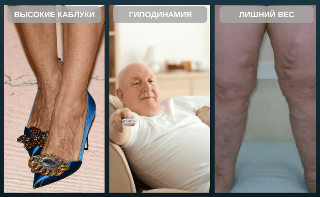 Гель от варикоза вен на ногах