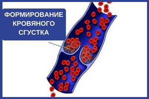 формирование тромба