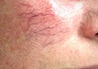 варикоз на лице