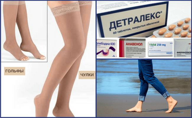 Можно ли заниматься бегом при варикозе ног Противопоказания обувь питание