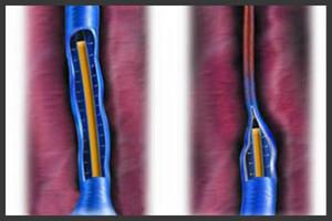 склерооблитерация