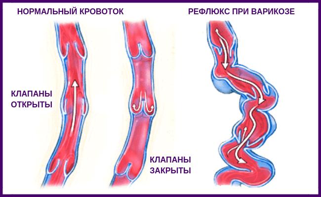 Механизм проведения лечения